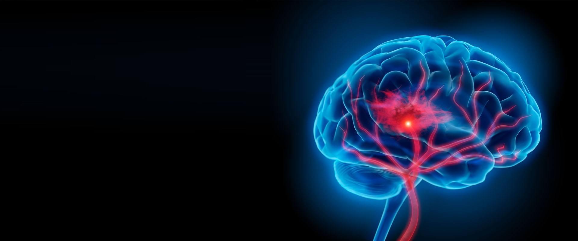beyin-anevrizmalar