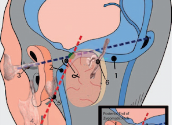 preoperative-exposure-of-sigmoid-sinus-trajectory-in-posterolateral-cranial-base-approaches-using-a-new-landmark-through-a-neurosurgical-perspective